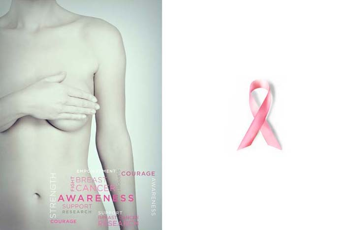 Breast Cancer copy 2
